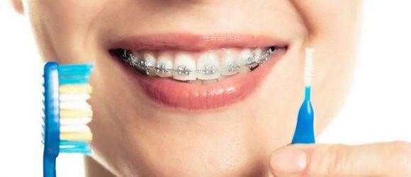 Cuidados e higiene de los dientes con brackets. Paso a paso.